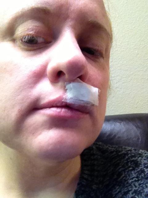 skin cancer on cupid'