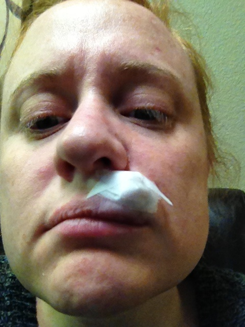 Mohs better lip: lots of swelling, no more carcinoma